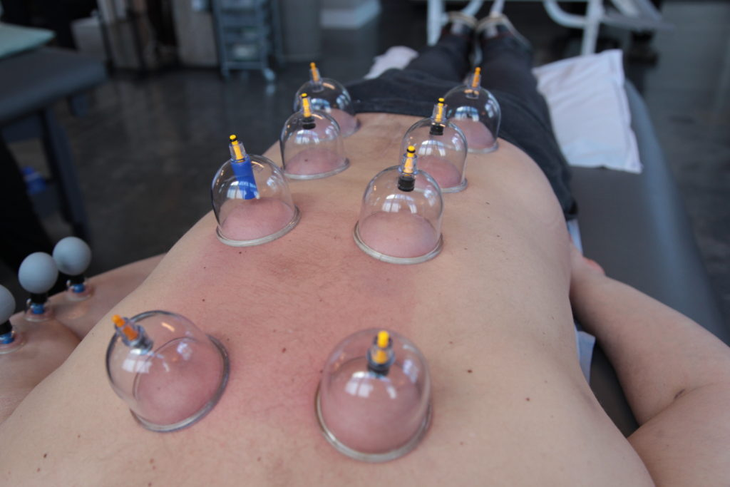 ACE Massage cupping