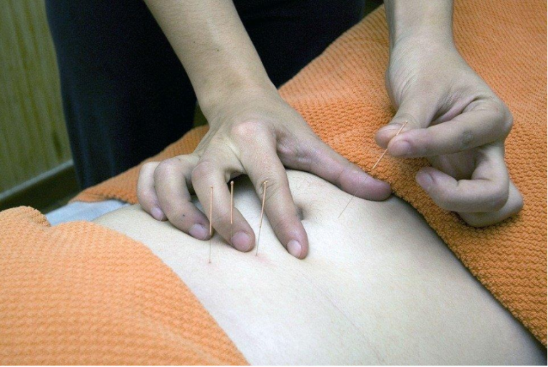 acupuncture therapist newark nj Archives - airontp